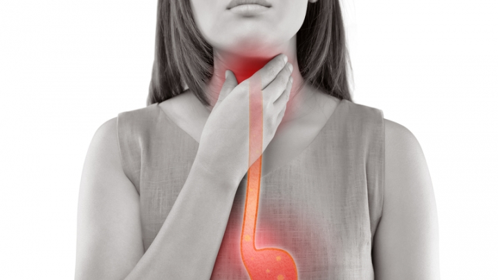 All About Acid Reflux | RxWiki