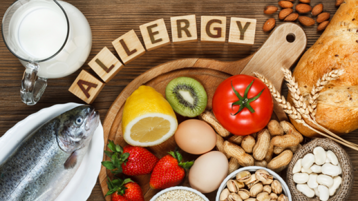 Develp food allergies adult onset