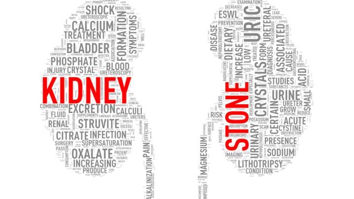 Kidney Stone Prevention Rxwiki