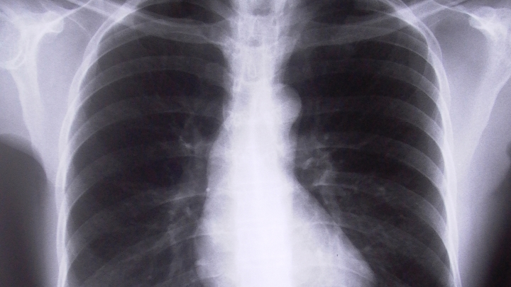 New Drug For Copd Symptoms Rxwiki