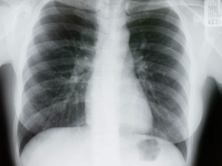 Why Lung Cancer Survival Rates Vary