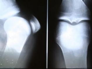 CT Scan For Bone Cancer Triples Accuracy
