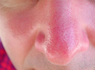 A Cure for Sunburn May be on Horizon