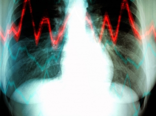 Strict vs. Lenient Heart-Rate Control