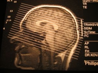 Head & Neck Cancer Aggressive in Transplant Patients