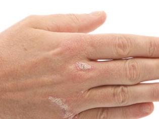 Shedding Light on Psoriasis
