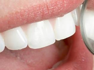 A Healthy Mouth Didn't Help Control Diabetes