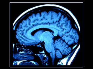 Link Between Epilepsy and MS