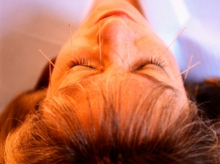 Why Does Acupuncture Work?