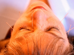 Needles For Bell's Palsy