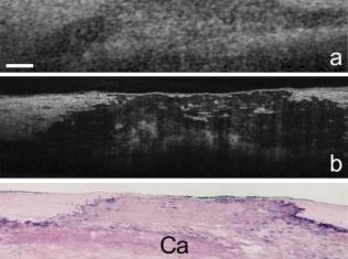 New Technology Reveals Coronary Artery Cells