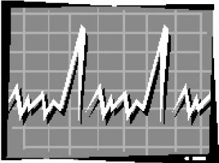 Abnormal Heart Rhythm Drug Increases Risk of Dying