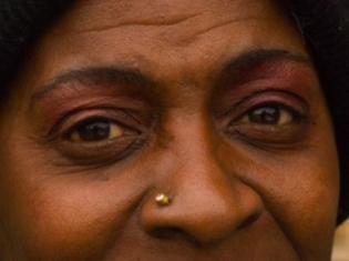 Women, Minorities Lag in Heart Attack Care