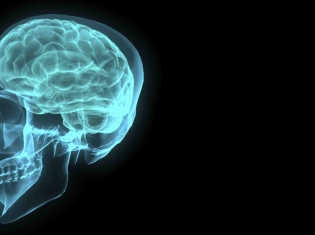 Mild Brain Damage May Be Long-Term