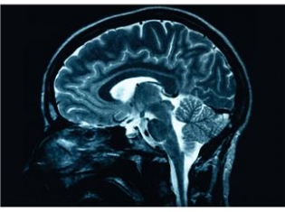 MS and Gray Matter