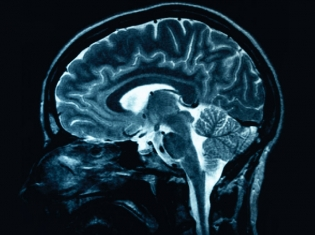 Stroke or Death Risk Increased with Brain Stent