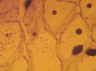 Surprising Mechanism Aids Cell Self Destruction