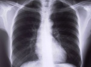 Happy International Day of Radiology!