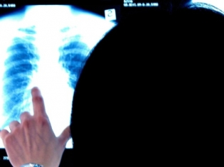 Chest Scans May Spot Signs of Heart Disease