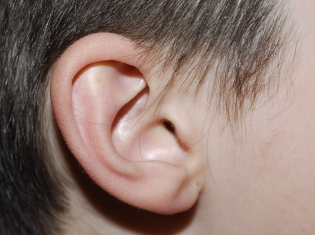 Glue Ear: Resolving the Sticky Problem