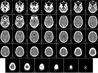 Procedure May Lower Parkinson's Pain