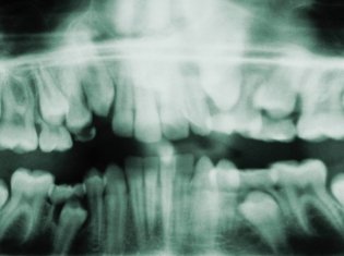 From Mouth to Back: Gum Disease and AS