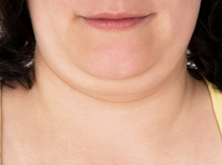 Approval Recommended for Double Chin Rx