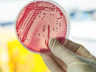 Rx-Resistant E. Coli: An Emerging Threat