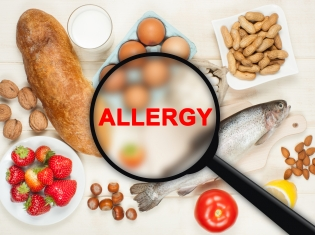 The Impact of Genetics on Food Allergy Risk