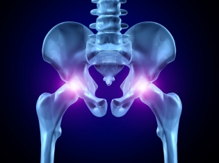 After Knee Replacement, Watch Your Hips