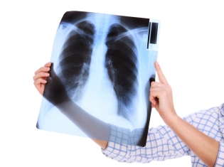 Good News for Older Patients with Lung Cancer