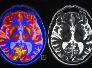Menopause, Estrogen and Your Memory