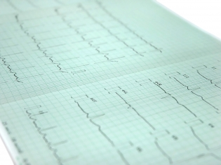 Identifying High Risk Heart Attack Patients