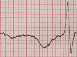 Cardiac Patients Dying Less From Heart Troubles