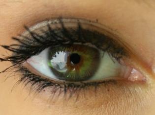Eye Disease May Signal Onset of MS