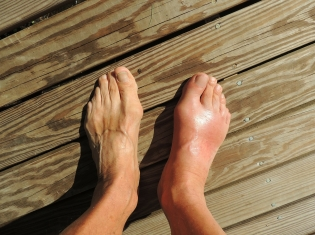 Gout Patients Missed Out on Medication