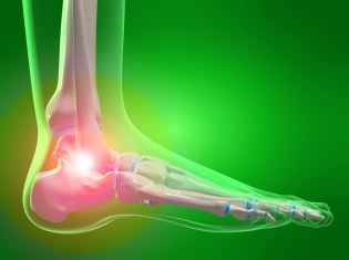 Treating the Effects of Gout Treatment