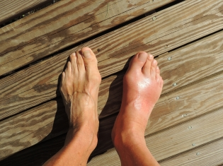 Gout Patients May Have Higher Diabetes Risk