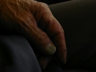 Diabetes Rx May Keep Arthritis at Bay