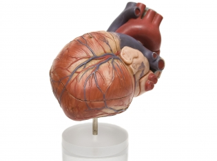 Heart Imaging: Worth the Risk?