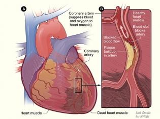 New Application for Bayer Heart Drug