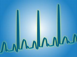 Mortality Risk Established for Genetic Heart Rhythm Disorders