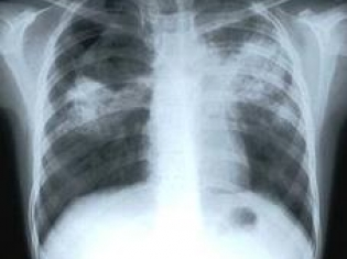 FDA Proposes Lower Risk Classification for Tuberculosis Testing