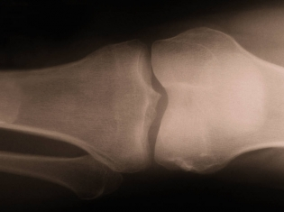 Most Damage, Most Gain in Knee Replacement