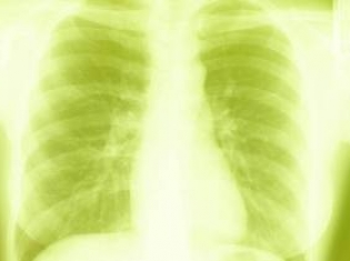 Gene That Drives Lung Cancer Discovered
