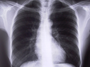 Lung Cancer Rx Might Outperform Chemo