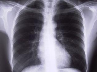 Non-Smoker Lung Tumors are More Unstable