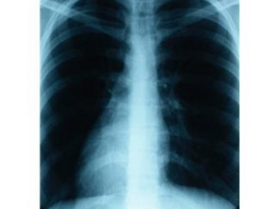 Annual X-Rays Aren't Enough to Stop Lung Cancer
