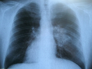 Better Scope for Lung Disease Diagnosis