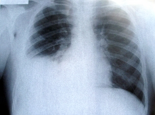 Good Old X-Rays For Spotting Lung Cancer